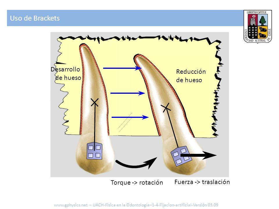 Uso de Brackets www.gphysics.net – UACH-Fisica en la Odontologia–1-4-Fijacion-artificial-Versión 03.09 Reducción de hueso Desarrollo de hueso Torque -