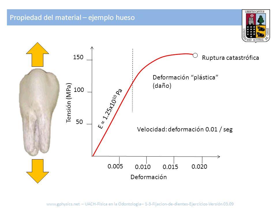Propiedad del material – ejemplo hueso 0.005 0.010 0.015 0.020 Deformación 150 100 50 Tensión (MPa) Velocidad: deformación 0.01 / seg Deformación plás