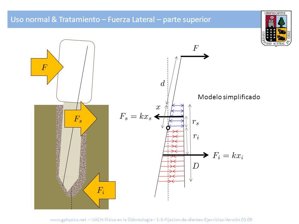 Uso normal & Tratamiento – Fuerza Lateral – parte superior Modelo simplificado www.gphysics.net – UACH-Fisica en la Odontologia– 1-3-Fijacion-de-dient