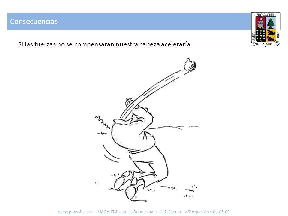 Consecuencias Si las fuerzas no se compensaran nuestra cabeza aceleraría www.gphysics.net – UACH-Fisica en la Odontologia– 1-2-Fuerza –y-Torque-Versió