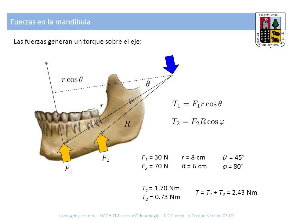 Fuerzas en la mandíbula Las fuerzas generan un torque sobre el eje: F 1 = 30 N F 2 = 70 N r = 8 cm R = 6 cm = 45° = 80° T 1 = 1.70 Nm T 2 = 0.73 Nm T