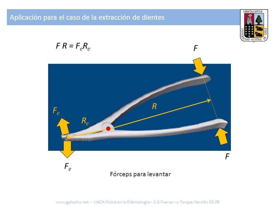 Aplicación para el caso de la extracción de dientes F F FeFe FeFe R ReRe F R = F e R e Fórceps para levantar www.gphysics.net – UACH-Fisica en la Odon