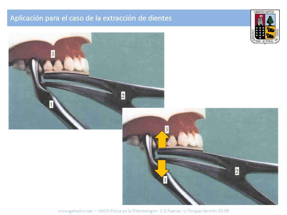 Aplicación para el caso de la extracción de dientes www.gphysics.net – UACH-Fisica en la Odontologia– 1-2-Fuerza –y-Torque-Versión 03.09