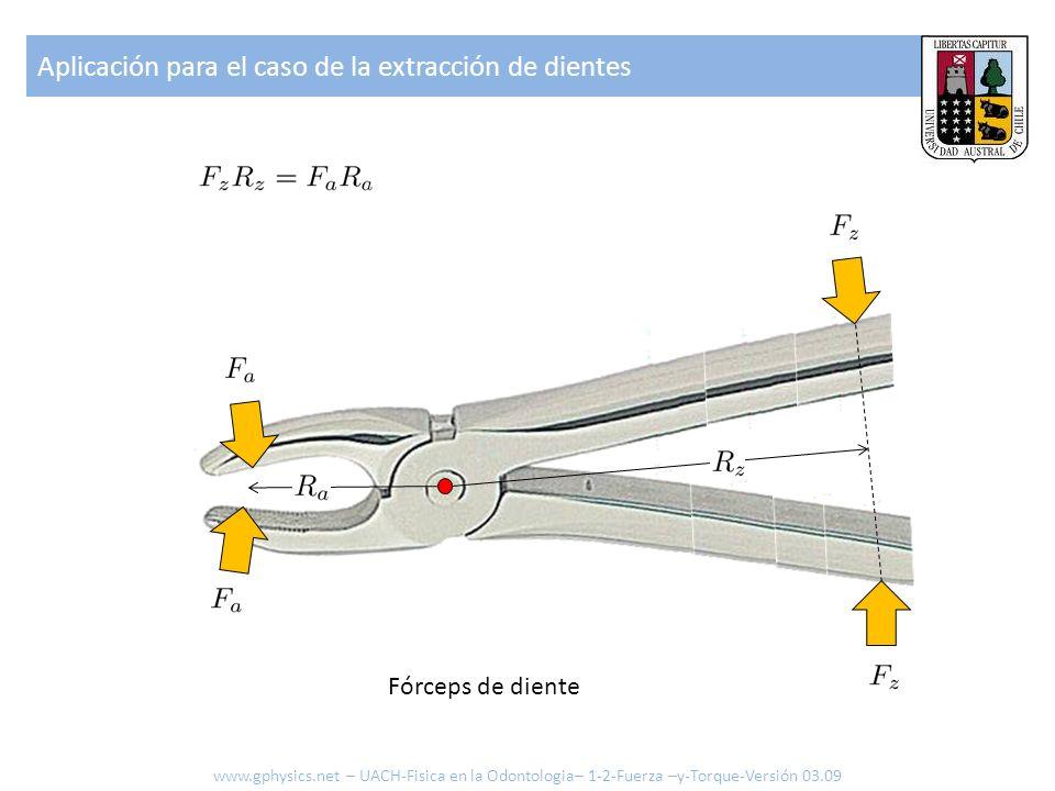 Aplicación para el caso de la extracción de dientes Fórceps de diente www.gphysics.net – UACH-Fisica en la Odontologia– 1-2-Fuerza –y-Torque-Versión 0