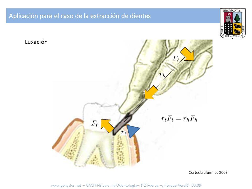 Aplicación para el caso de la extracción de dientes www.gphysics.net – UACH-Fisica en la Odontologia– 1-2-Fuerza –y-Torque-Versión 03.09 Luxación Cort