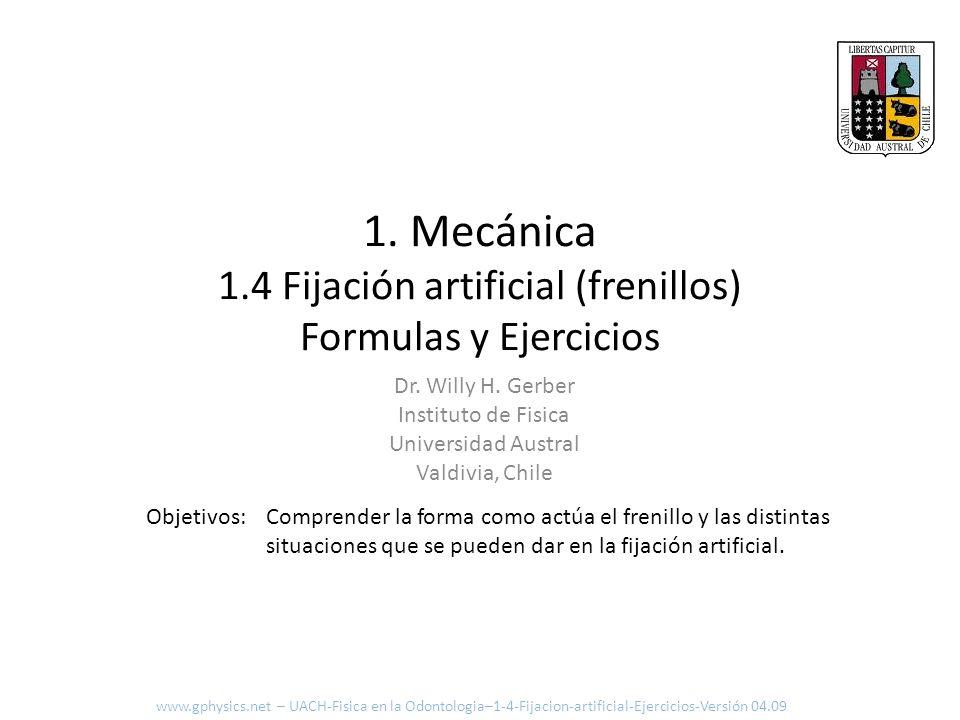 1. Mecánica 1.4 Fijación artificial (frenillos) Formulas y Ejercicios Comprender la forma como actúa el frenillo y las distintas situaciones que se pu
