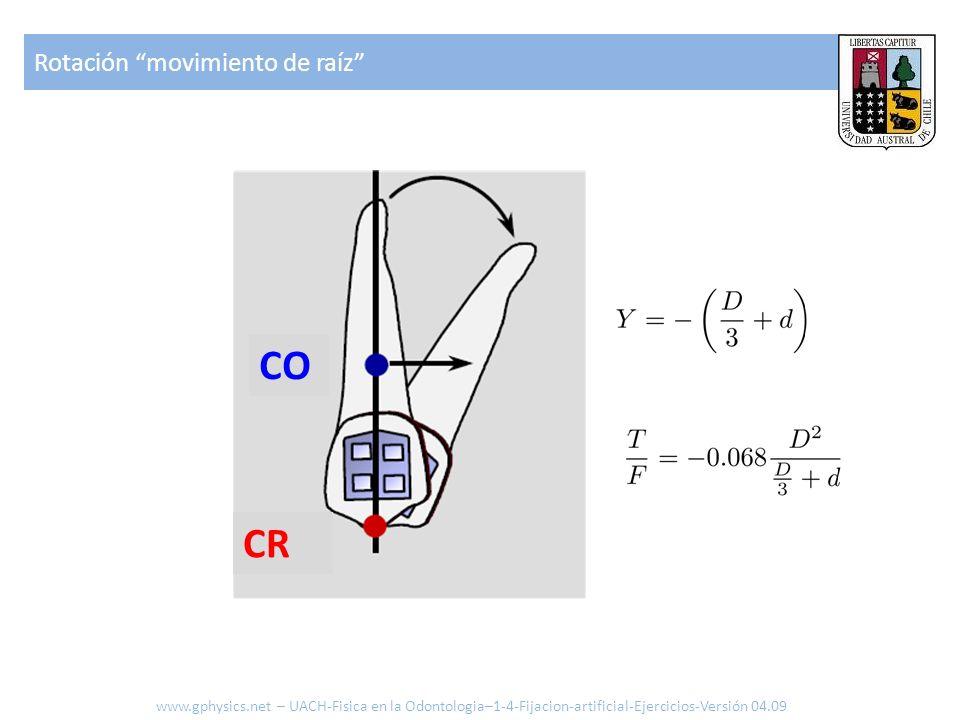 Rotación movimiento de raíz CR CO www.gphysics.net – UACH-Fisica en la Odontologia–1-4-Fijacion-artificial-Ejercicios-Versión 04.09