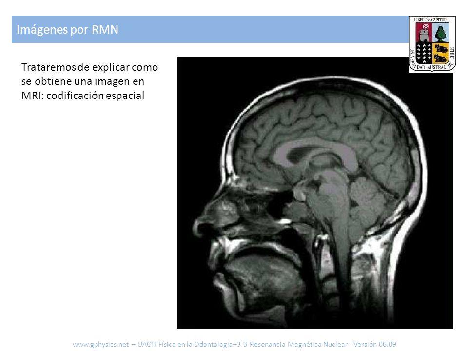 Imágenes por RMN www.gphysics.net – UACH-Física en la Odontologia–3-3-Resonancia Magnética Nuclear - Versión 06.09 Trataremos de explicar como se obti