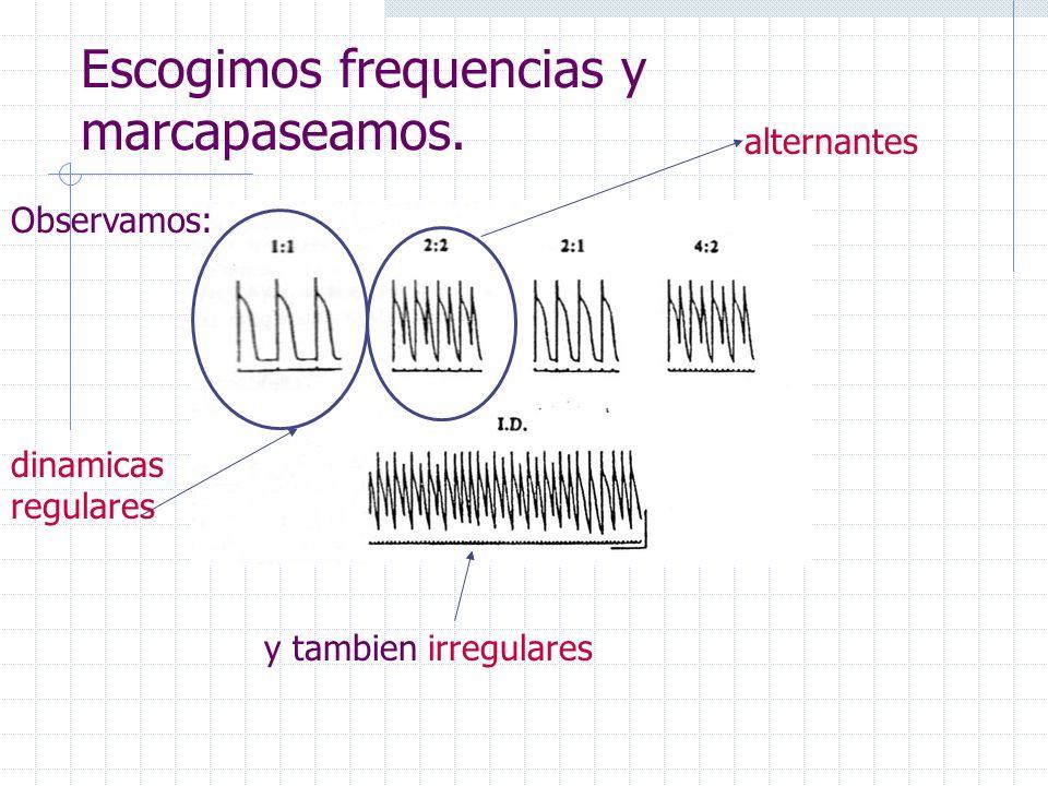 Escogimos frequencias y marcapaseamos.