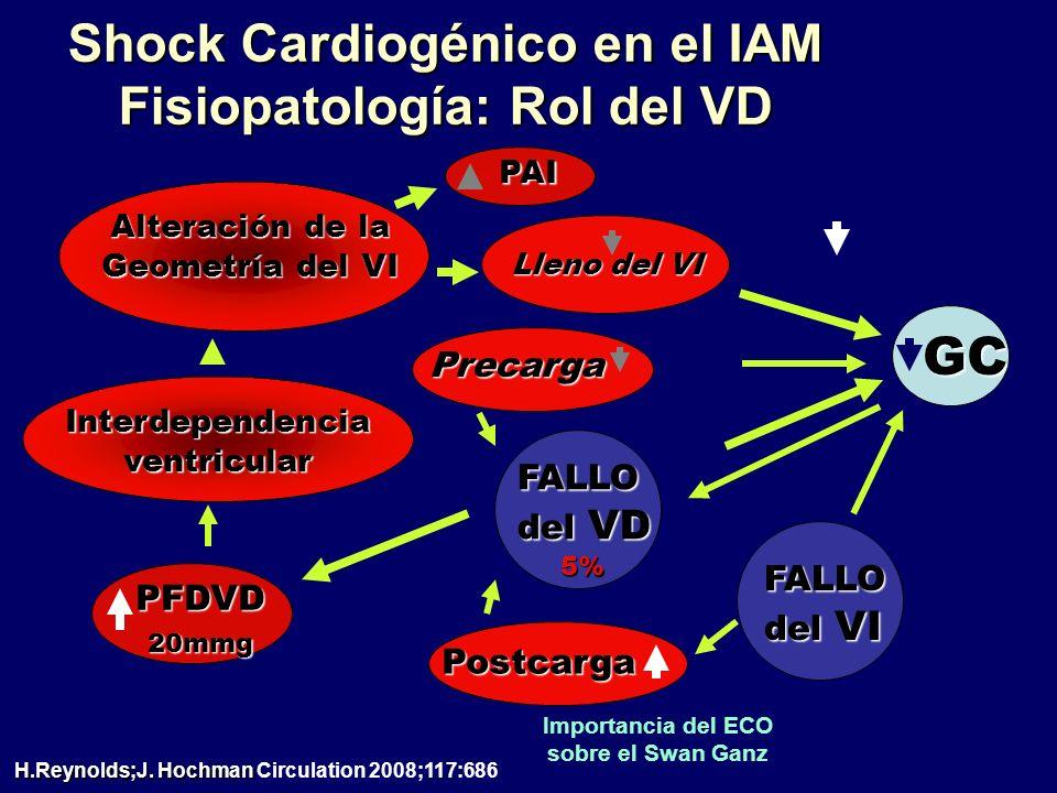 Shock Cardiogénico en el IAM Fisiopatología: Rol del VD PAI Alteración de la Geometría del VI Interdependencia ventricular FALLO del VD 5% PFDVD 20mmg