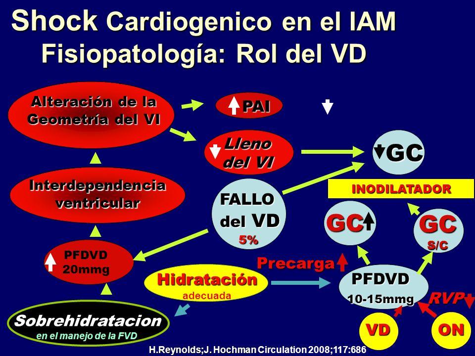 Shock Cardiogenico en el IAM Fisiopatología: Rol del VD PAI Alteración de la Geometría del VI Interdependencia ventricular Sobrehidratacion en el mane