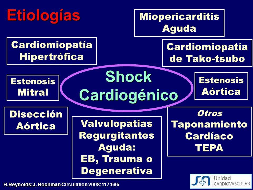 Shock Cardiogénico Miopericarditis Aguda Cardiomiopatía de Tako-tsubo Cardiomiopatía Hipertrófica Disección Aórtica Valvulopatias Regurgitantes Aguda: