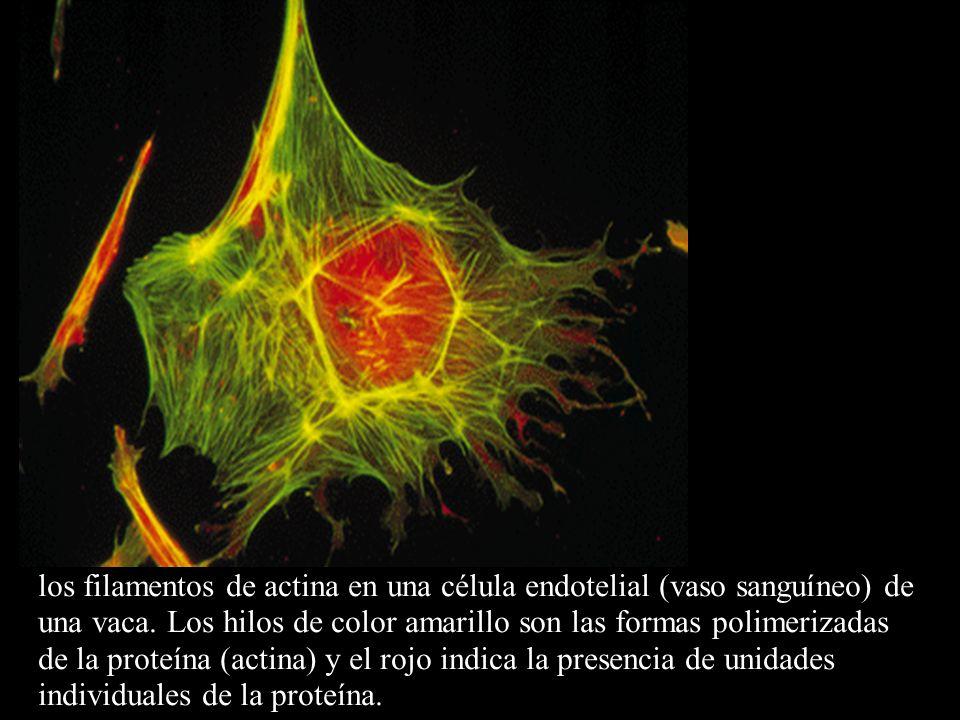 los filamentos de actina en una célula endotelial (vaso sanguíneo) de una vaca. Los hilos de color amarillo son las formas polimerizadas de la proteín