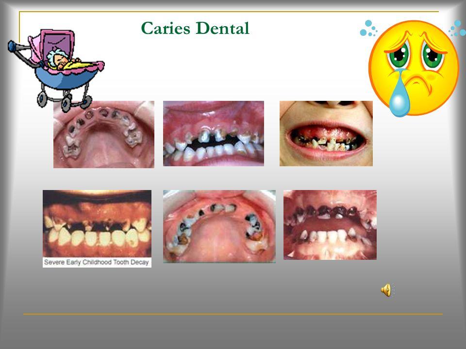 Sarro Dental (Pág. 26) Que es? Es una cosa dura que se forma encima de los dientes. Esta formado por minerales de saliva. Es también llamado calculo.