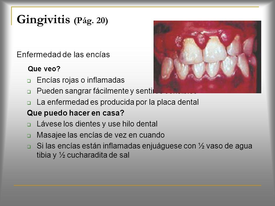 Síntomas de la Caries Dental Dolor de diente, sobre todo después de consumir bebidas o alimentos dulces, fríos o calientes Huecos o agujeros visibles