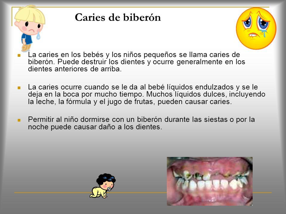 Sellantes (Pág. 90) Que son? Son coberturas plásticas seguras que el dentista coloca sobre los dientes de atrás. Estas coberturas mantiene fuera a los