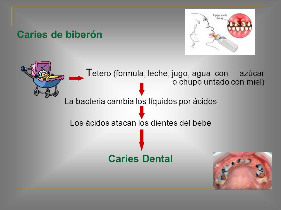 Caries de biberón La caries en los bebés y los niños pequeños se llama caries de biberón. Puede destruir los dientes y ocurre generalmente en los dien
