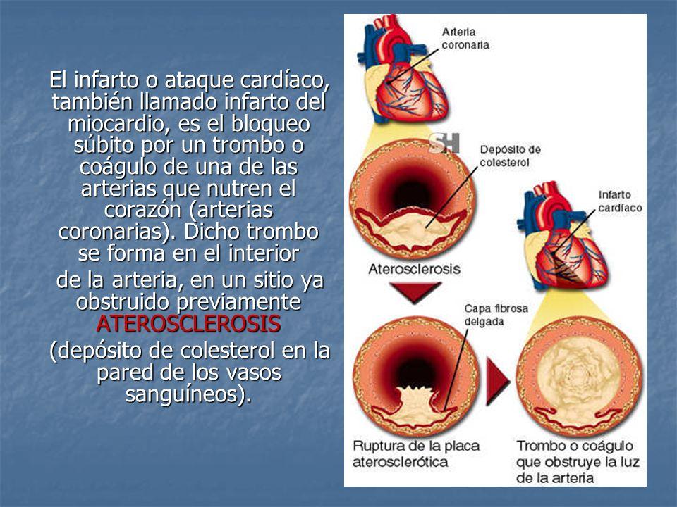 El infarto o ataque cardíaco, también llamado infarto del miocardio, es el bloqueo súbito por un trombo o coágulo de una de las arterias que nutren el