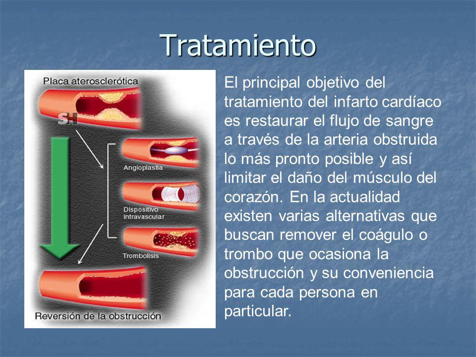 Tratamiento El principal objetivo del tratamiento del infarto cardíaco es restaurar el flujo de sangre a través de la arteria obstruida lo más pronto