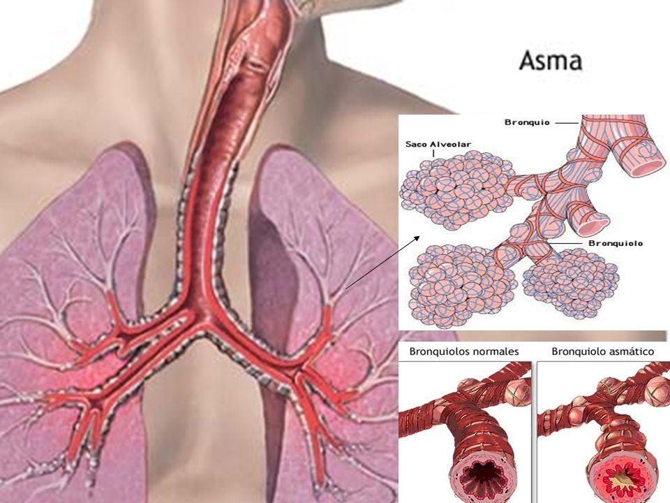ETIOLOGIA Alérgico e hipersensible.Alérgico e hipersensible.