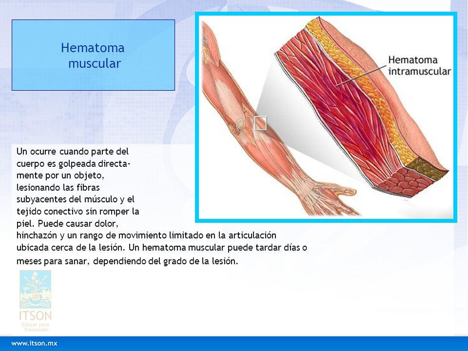 Hematoma muscular Un ocurre cuando parte del cuerpo es golpeada directa- mente por un objeto, lesionando las fibras subyacentes del músculo y el tejid