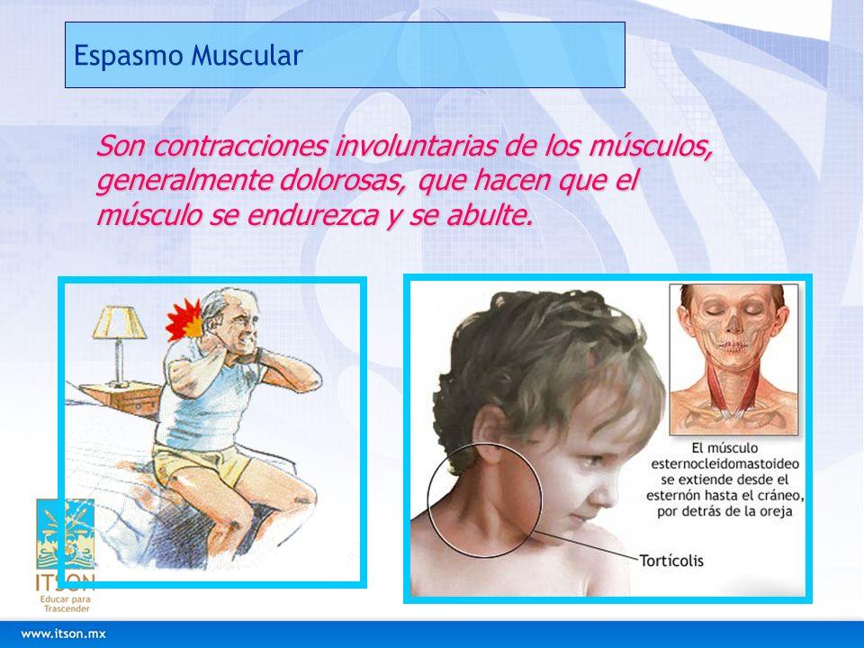 Espasmo Muscular Son contracciones involuntarias de los músculos, generalmente dolorosas, que hacen que el músculo se endurezca y se abulte.