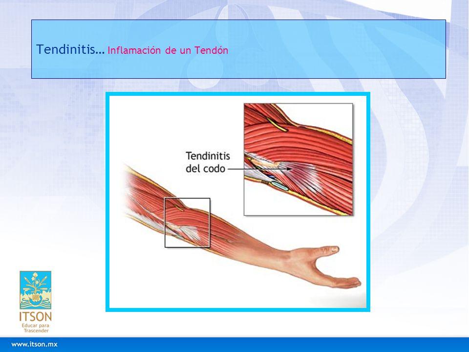 Tendinitis… Inflamación de un Tendón