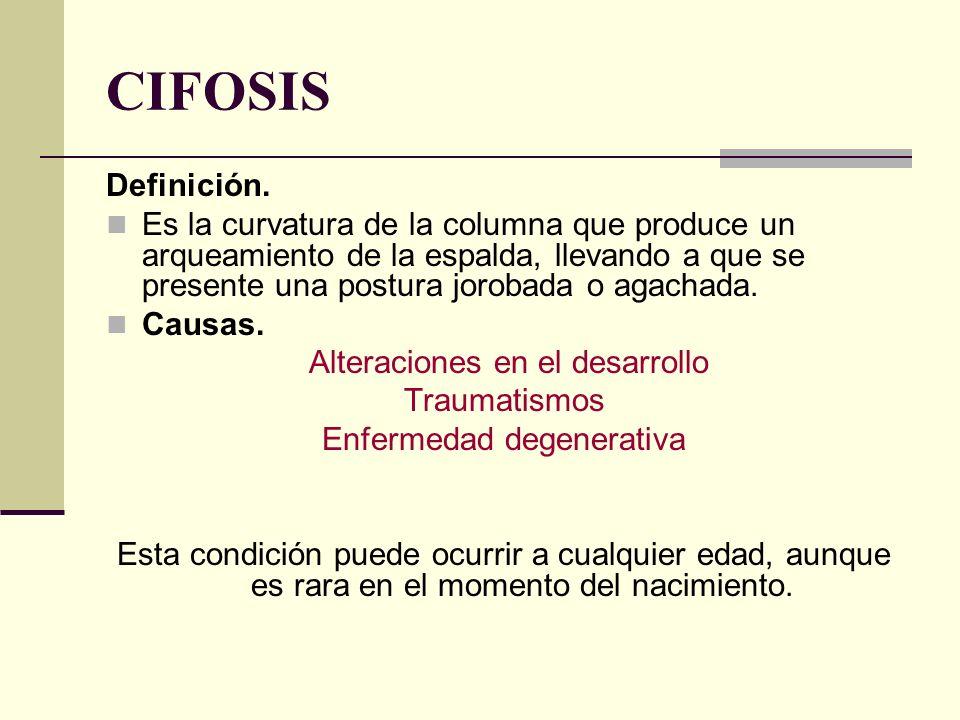 CIFOSIS Definición. Es la curvatura de la columna que produce un arqueamiento de la espalda, llevando a que se presente una postura jorobada o agachad