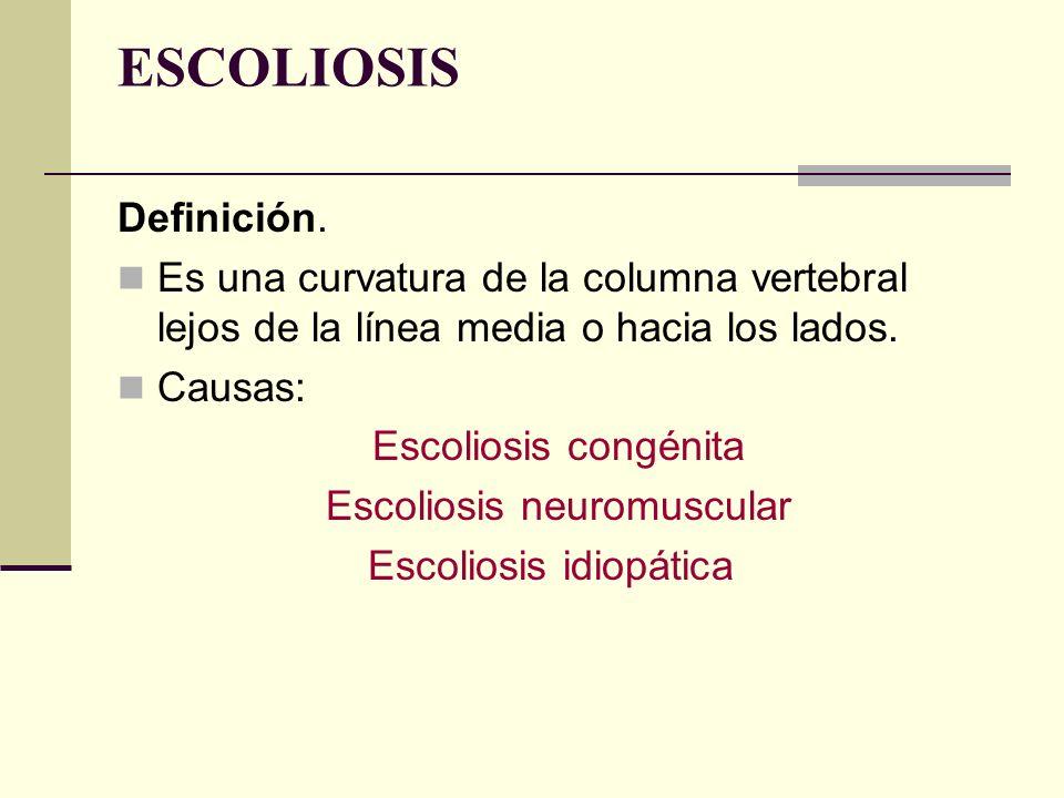 ESCOLIOSIS Definición. Es una curvatura de la columna vertebral lejos de la línea media o hacia los lados. Causas: Escoliosis congénita Escoliosis neu