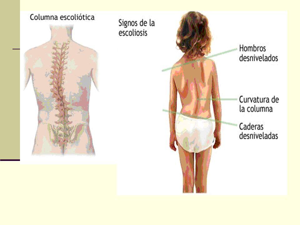 ESPONDILOLISTESIS Definición.Consiste en un deslizamiento de una vértebra sobre otra.