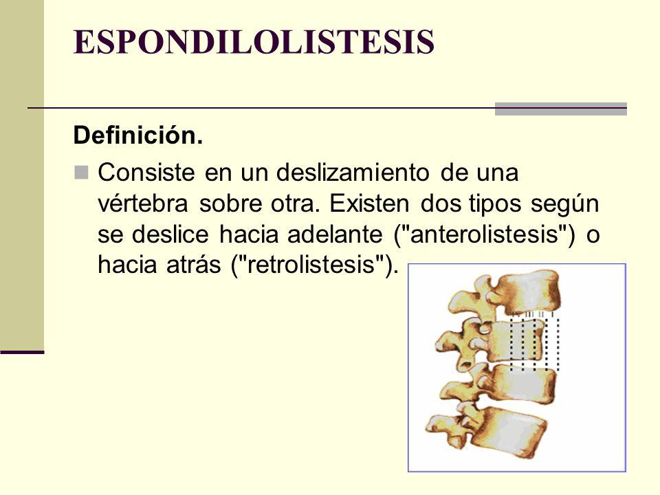 ESPONDILOLISTESIS Definición. Consiste en un deslizamiento de una vértebra sobre otra. Existen dos tipos según se deslice hacia adelante (