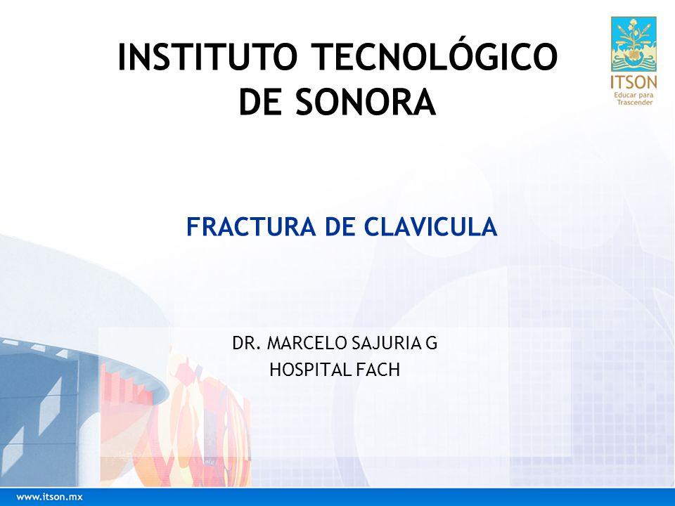 FRACTURA DE CLAVICULA DR. MARCELO SAJURIA G HOSPITAL FACH INSTITUTO TECNOLÓGICO DE SONORA