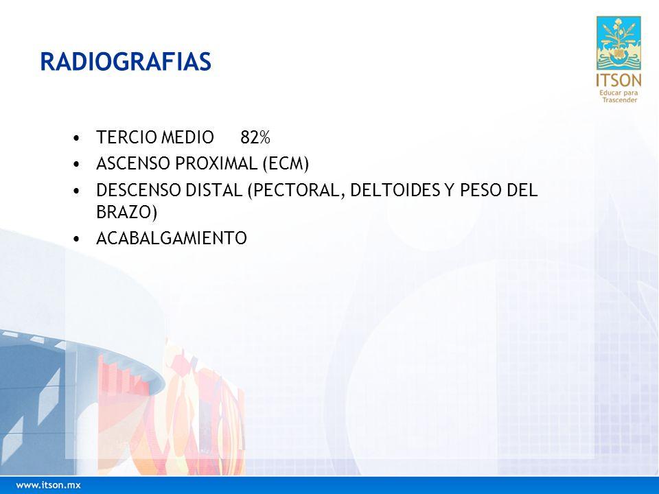 RADIOGRAFIAS TERCIO MEDIO 82% ASCENSO PROXIMAL (ECM) DESCENSO DISTAL (PECTORAL, DELTOIDES Y PESO DEL BRAZO) ACABALGAMIENTO
