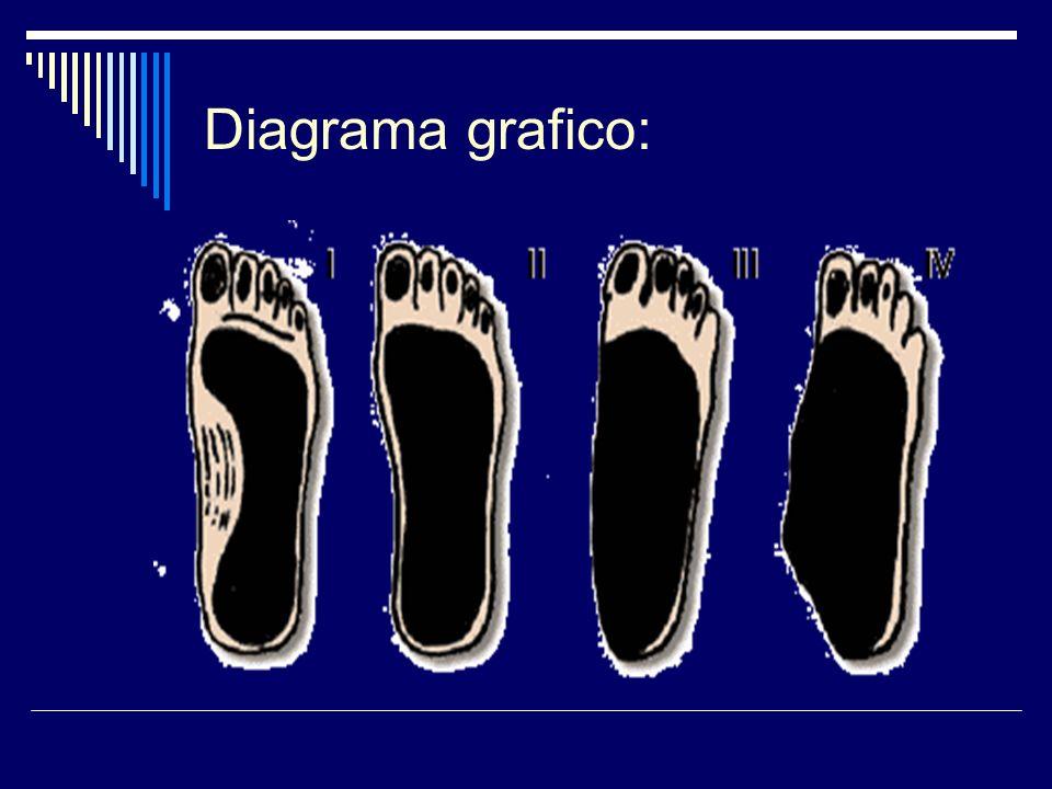 ETIOLOGÍA El pie plano flexible puede estar condicionado por diversas alteraciones como: 1.- Trastornos del escafoides.