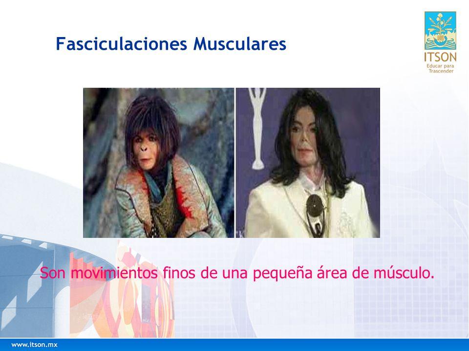 Fasciculaciones Musculares Son movimientos finos de una pequeña área de músculo.