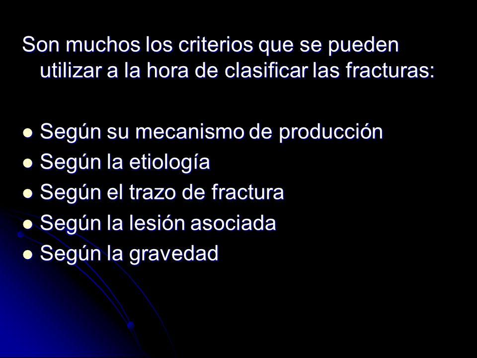 Son muchos los criterios que se pueden utilizar a la hora de clasificar las fracturas: Según su mecanismo de producción Según su mecanismo de producci