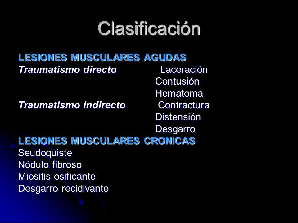 Clasificación LESIONES MUSCULARES AGUDAS Traumatismo directo Laceración Contusión Contusión Hematoma Hematoma Traumatismo indirecto Contractura Disten