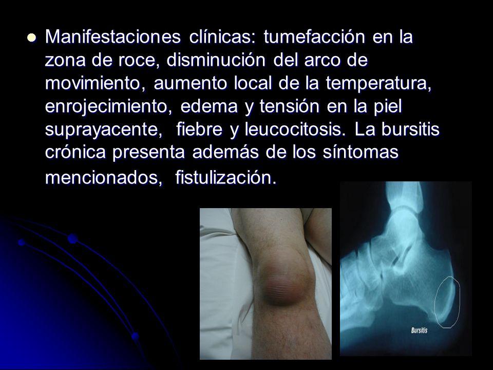 Manifestaciones clínicas: tumefacción en la zona de roce, disminución del arco de movimiento, aumento local de la temperatura, enrojecimiento, edema y