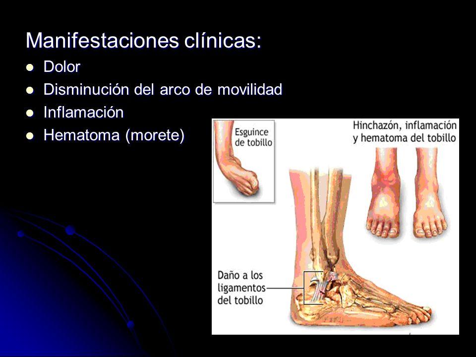 Manifestaciones clínicas: Dolor Dolor Disminución del arco de movilidad Disminución del arco de movilidad Inflamación Inflamación Hematoma (morete) He