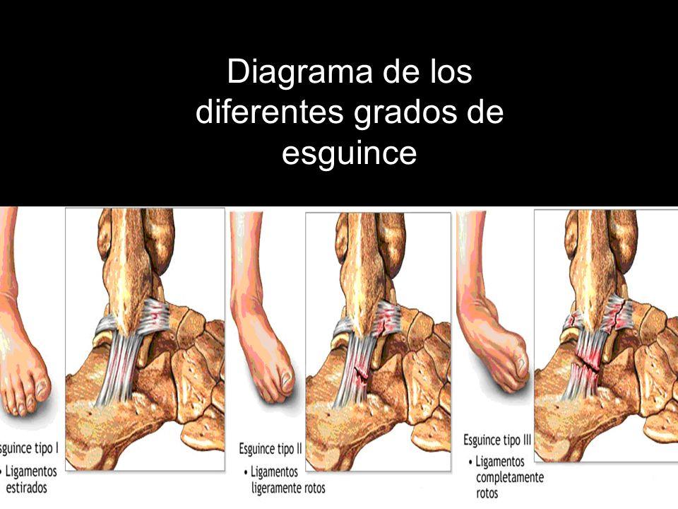 LUXACIONES La luxación es un desplazamiento completo y persistente de las superficies articulares de los huesos que constituyen una articulación, con ruptura parcial o total de la capsula articular y de algunos de sus ligamentos.