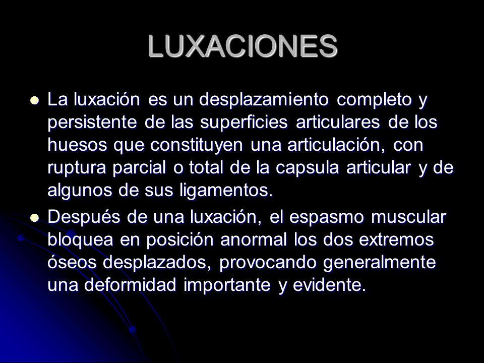 LUXACIONES La luxación es un desplazamiento completo y persistente de las superficies articulares de los huesos que constituyen una articulación, con
