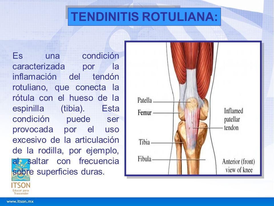 Es una condición caracterizada por la inflamación del tendón rotuliano, que conecta la rótula con el hueso de la espinilla (tibia). Esta condición pue