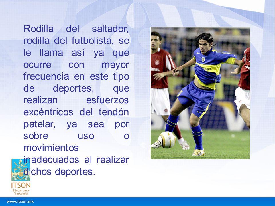 Rodilla del saltador, rodilla del futbolista, se le llama así ya que ocurre con mayor frecuencia en este tipo de deportes, que realizan esfuerzos excé