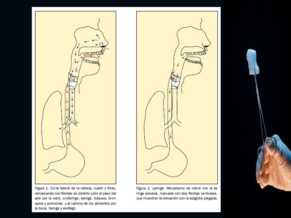 Indicaciones: Obstrucción de la vía aérea Incompetencia de la función de cierre de la laringe.