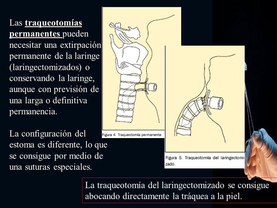 CÁNULAS Consisten en un tubo que sirve para asegurar que la comunicación creada entre la tráquea y la piel no se cierre de nuevo o se deforme, ya que existe una predisposición natural a ello, como resultado del proceso de cicatrización normal de la herida.