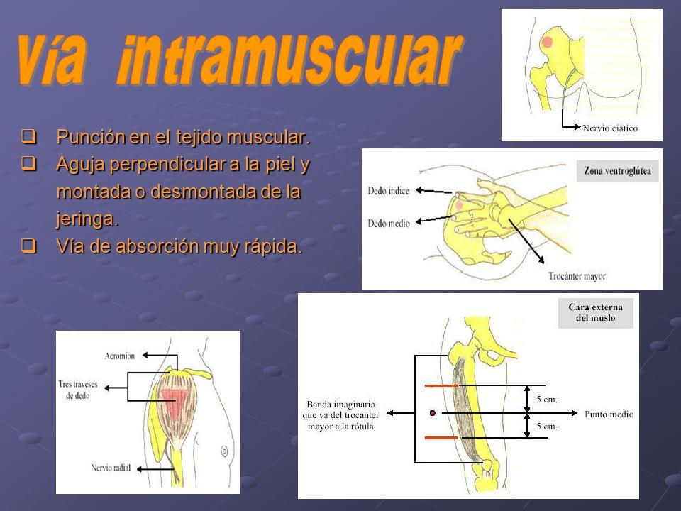 Punción en el tejido muscular. Punción en el tejido muscular. Aguja perpendicular a la piel y Aguja perpendicular a la piel y montada o desmontada de