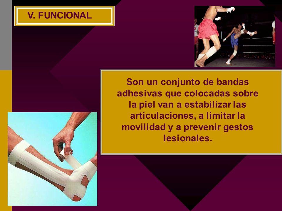 Son un conjunto de bandas adhesivas que colocadas sobre la piel van a estabilizar las articulaciones, a limitar la movilidad y a prevenir gestos lesio