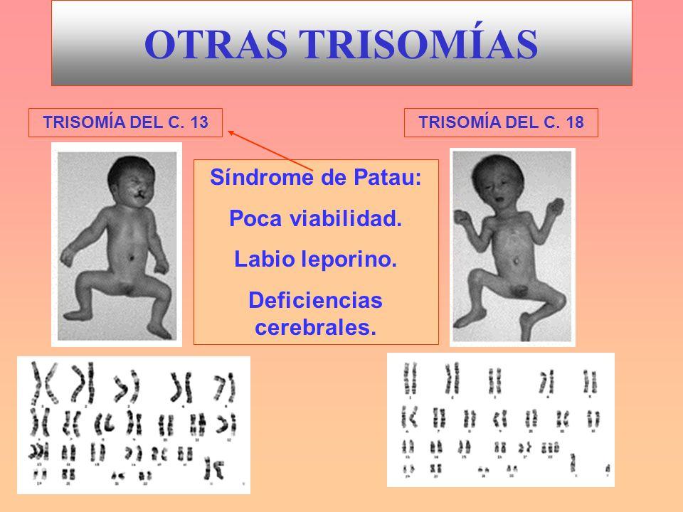 OTRAS TRISOMÍAS TRISOMÍA DEL C. 13TRISOMÍA DEL C. 18 Síndrome de Patau: Poca viabilidad. Labio leporino. Deficiencias cerebrales.
