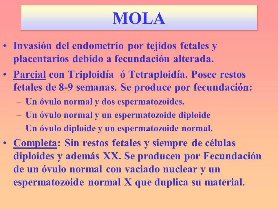 MOLA Invasión del endometrio por tejidos fetales y placentarios debido a fecundación alterada. Parcial con Triploidía ó Tetraploidía. Posee restos fet