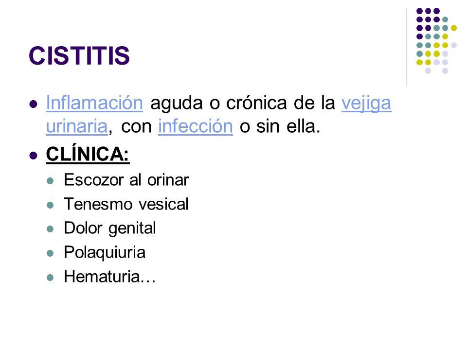 CISTITIS Inflamación aguda o crónica de la vejiga urinaria, con infección o sin ella.